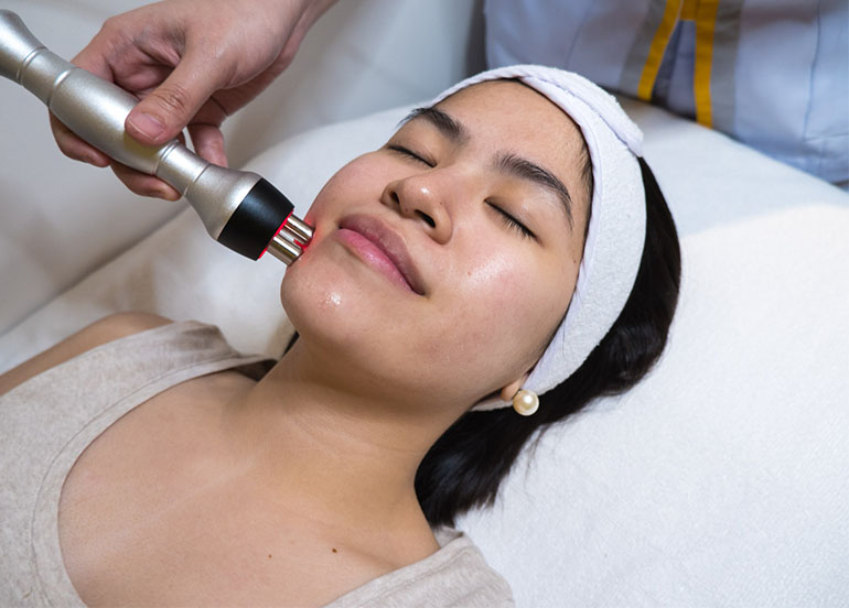 Radiofrequency on Face and Chin by Skin Manila
