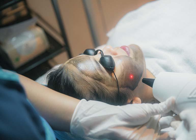 carbon-laser-treatment