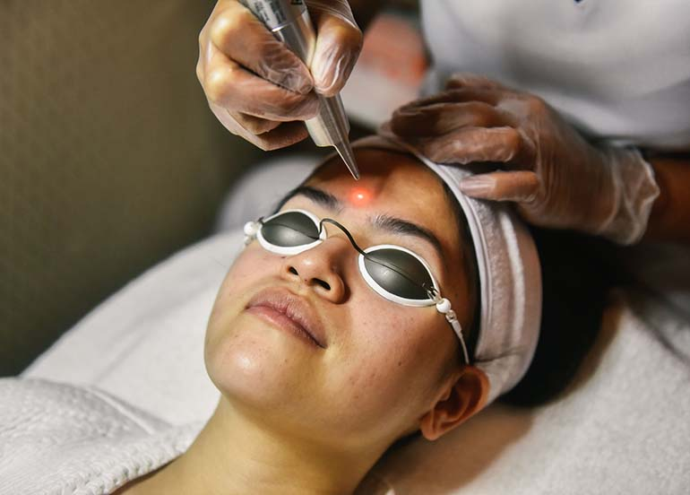 revlite-laser-treatment