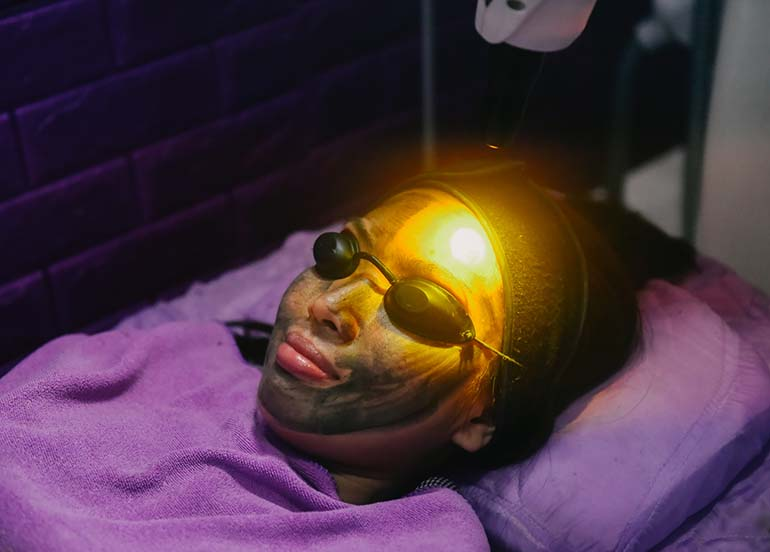 carbon-laser-with-facial